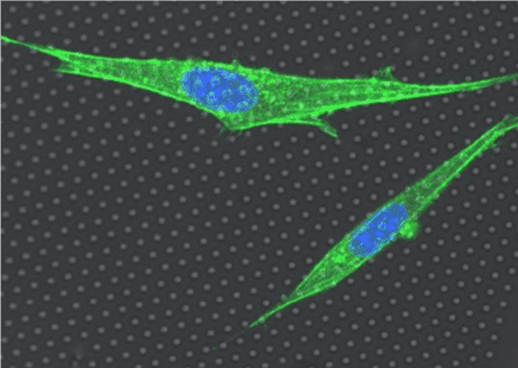 What Gives Animal Cells Their Agency? Yu Shi Measures Cytoskeletal Fluctuations