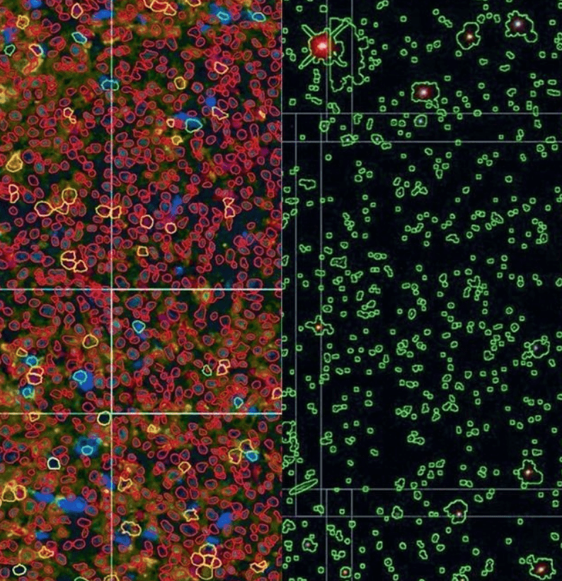 """""""Mapping Cancer as if it were the Universe,"""" Alex Szalay Featured in <i>The Economist</i>"""